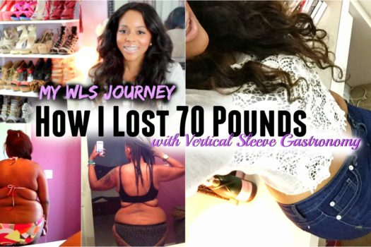 My WLS Journey: How I Lost 70 Pounds With Vertical Sleeve Gastronomy