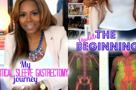 Gastric Sleeve Post Op 1 Year Update And How To Get Started