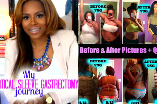 ChanelTube: Gastric Sleeve Post Op Before & After Pictures + Q&A