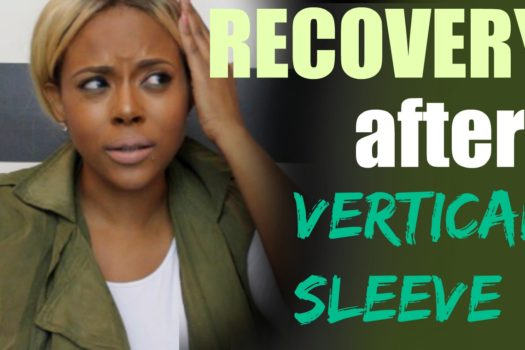Recovery And What To Expect Days After Gastric Vertical Sleeve