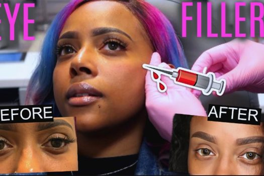 I GOT WORK DONE! DERMA FILLERS UNDER EYE AT URBAN SKIN | BEFORE & AFTER | GRAPHIC FOOTAGE